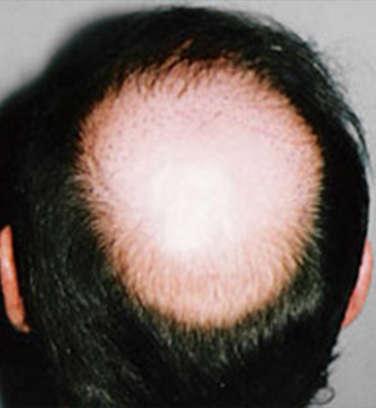 cena przeszczepu włosów zależy od wielkości ubytków
