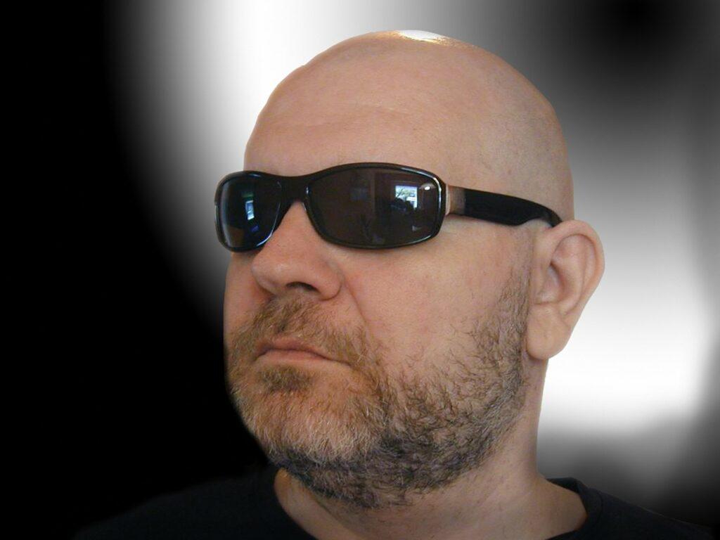 alopecja
